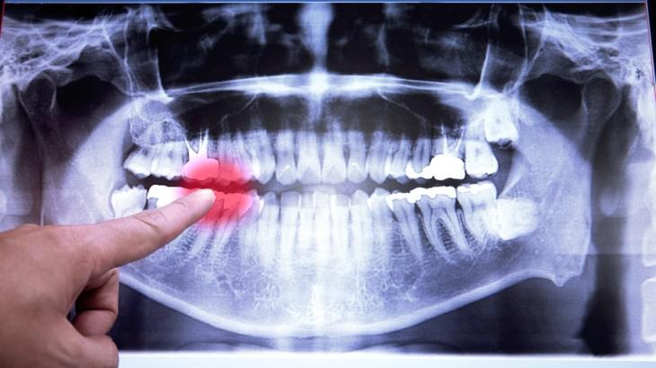 В какой стоматологии сделать снимок зуба в Омске?